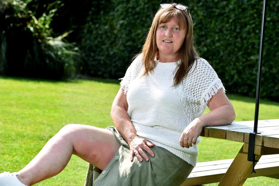 De muggen hebben Ann Hayen (51) uit Alken deze zomer al flink te pakken gehad.
