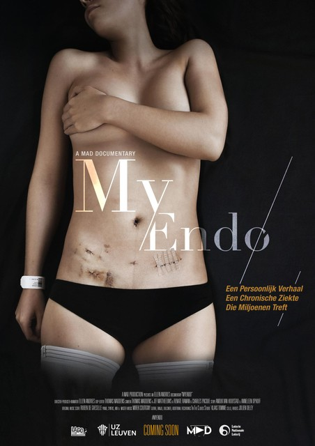 'My endo', zo heet de documentaire waar Thomas en Ellen 4,5 jaar aan gewerkt hebben.