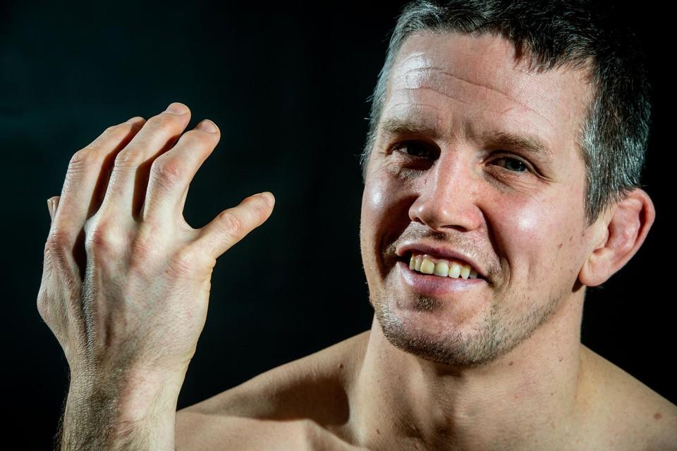 """Dirk Van Tichelt: """"In de winter kan ik mijn hand niet sluiten."""""""